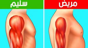 ما هو مرض ضمور العضلات .. أزمة الأدوية والأسباب ومراحل العلاج